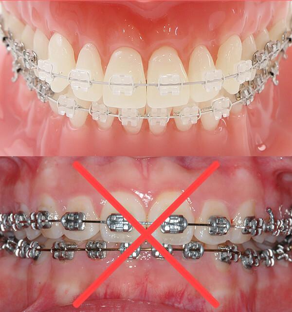 前歯に銀色の矯正装置を使用しません