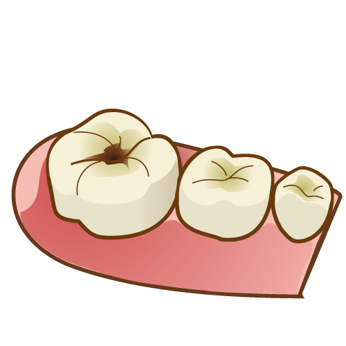 6歳臼歯 虫歯